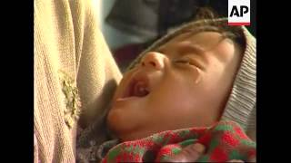Download UNICEF says 126-thousand children suffering severe malnutrition due to drought Video