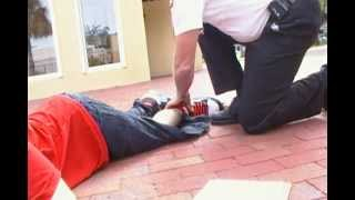 Download alex when he broke his leg Video