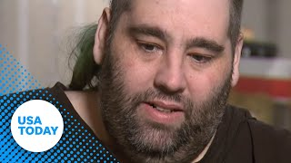 Download Man gets 100 pound growth removed from scrotum Video