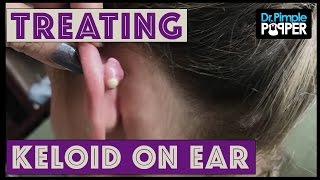 Download A Cute Keloid Treated with Cryoshape Video