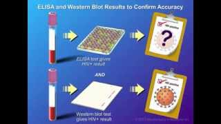 Download Diagnosis and Testing of HIV Infection Video