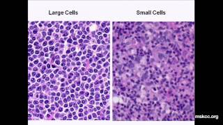 Download What You Need to Know about Non-Hodgkin's Lymphoma: Presentation Video