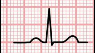 Download ECG Interpretation - Time and the ECG (Section 1, Part 5) Video