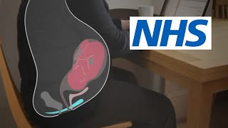 Download How and when should I do pelvic floor exercises? | NHS Video