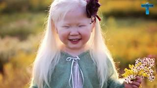 Download Top 10 Kids Who Are Unique & Amazing In The World Video