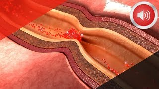 Download 의사가 싫어하는 막힌 '혈관' 뻥 뚫어주는 10가지 음식 Video
