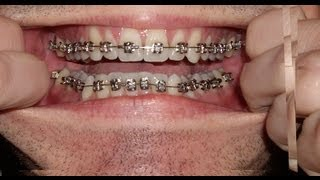 Download Braces - Photo taken every day - Before and After Transformation - Orthodontics Timelapse Video