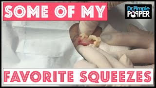 Download In Memory of some of My Favorite Squeezes: Dr Pimple Popper Video
