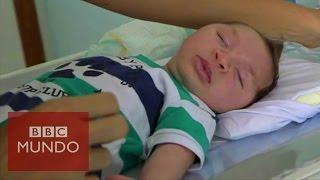 Download Virus zika: ″Mi bebé tiene microcefalia″ Video