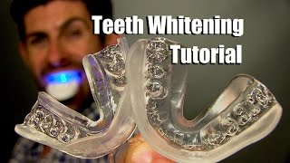 Download Home Teeth Whitening Tutorial   How To Whiten Your Teeth At Home For Best Results Video