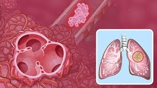 Download Understanding Non-Small Cell Lung Cancer Video
