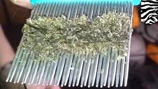 Download Kasus kutu rambut terburuk: terekam dalam sebuah video menjijikan - TomoNews Video
