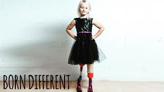 Download The Little Girl With No Legs And Big Dreams | BORN DIFFERENT Video
