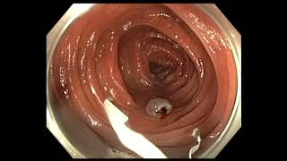Download Colonoscopy: Colon Polyp with Cancer - which one needs surgery after EMR Video