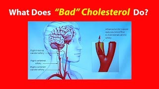 Download What Does ″Bad″ Cholesterol Do? Video