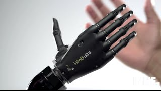 Download Top 5 bionic arm Video