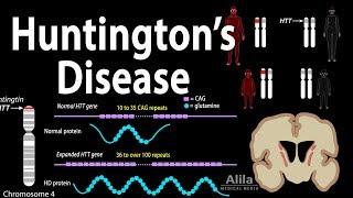 Download Huntington's Disease, Genetics, Pathology and Symptoms, Animation Video