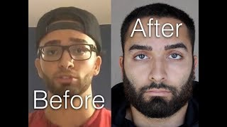 Download NoFap | 2+ Year Update | The Truth Video
