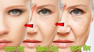 Download रोजाना 15 मिनट चेहरे कि झुर्रियां खत्म कर जवान सुंदर बना देगा | Remove Wrinkles From Face Video