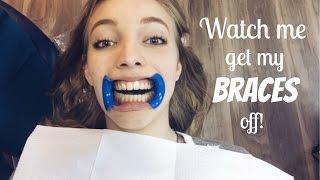 Download Watch me get my Braces off!!! Video