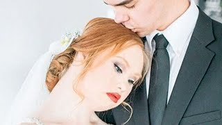 Download This Model with Down Syndrome's Bridal Photos are GORGEOUS | What's Trending Now Video