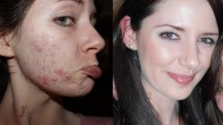 Download How To Get Clear Skin! Farewell, Acne. Video