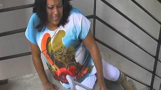Download The weakening of Pamelas legs due to Post Polio Syndrome prior to leg braces Video