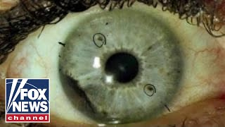 Download What is ocular melanoma? Video