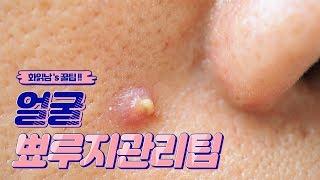 Download 얼굴 뾰루지 관리팁 ( 특명 : 여드름균을 제거하라 ) Video