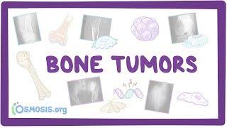 Download Bone tumors - causes, symptoms, diagnosis, treatment, pathology Video