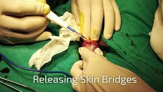 Download Skin Bridges,Stitchless Circumcision Surgery Dr.Sachin Kuber +919370240098/9370275336 Video