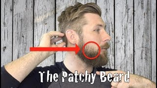 Download The Patchy Beard Video