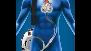 Download Man Lives 555 Days Without a Human Heart (Portable Artificial Heart) Video