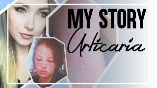 Download My Story: Urticaria (Chronic Idiopathic Hives) Video