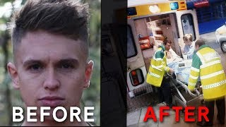 Download Joe Weller Before And After The KSI Fight Video