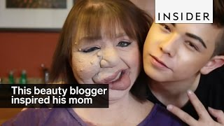 Download This beauty blogger inspired his mom to embrace her birthmark Video