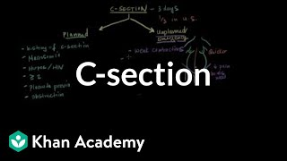 Download C-section | Reproductive system physiology | NCLEX-RN | Khan Academy Video