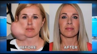 Download Parotidectomy Surgery UPDATE: Large Facial Tumor Removal, Parotid Gland: The Doctors TV Show Video