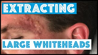 Download Acne Vulgaris and Extracting large Whiteheads - Part 1 Video