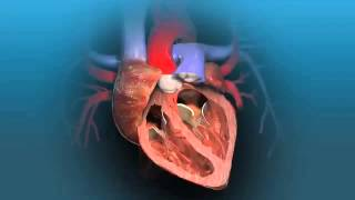 Download Aortic Valve Replacement Animation Video