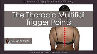 Download The Thoracic Multifidi Trigger Points Video