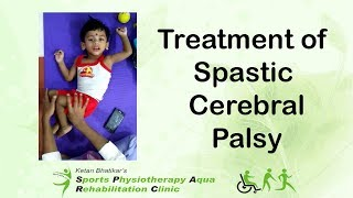 Download Treatment of Spastic Cerebral Palsy Video