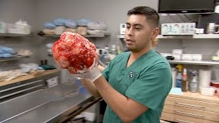 Download See The Whole Procedure That Led To The Removal Of A Massive Tumor From This Doberman Video
