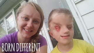 Download My Incredible Son With No Eyes | BORN DIFFERENT Video