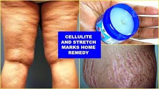 Download REDUCE CELLULITE AND STRETCH MARKS FAST AND EFFECTIVELY, WITH JUST 3 INGREDIENTS |Khichi Beauty Video