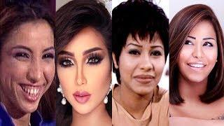 Download لن تصدق ان هؤلاء الفنانين تحولو بسبب عمليات التجميل - الجزء الثاني Video