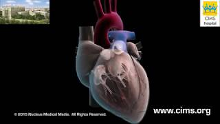 Download Aortic Valve Replacement (Hindi) - CIMS Hospital Video