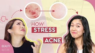 Download 5 Signs + 5 Easy Cures to Prevent Stressed Skin & Acne Video