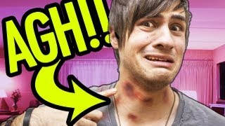 Download SO MANY HICKEYS! Video