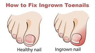 Download How to Fix Ingrown Toenails Quickly and Easily Video